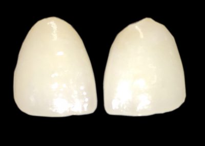 PFZ Porcelain to Zirconia Layered Crown